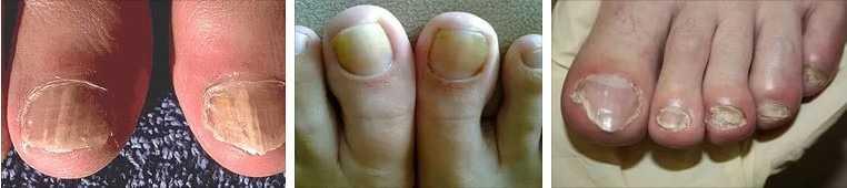 Грибок ногтейна ногах