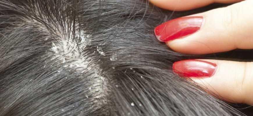 Лечение перхоти и грибка головы