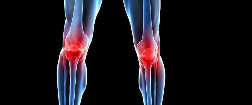 Артроз коленного сустава - лечение народными средствами