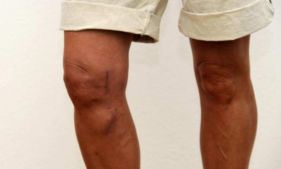 как выглядит артроз коленного сустава