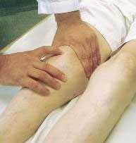 Изображение - Доа коленного сустава лечение народными средствами ostartroz1a