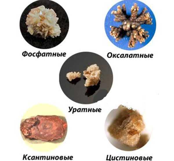камни в почках лечение