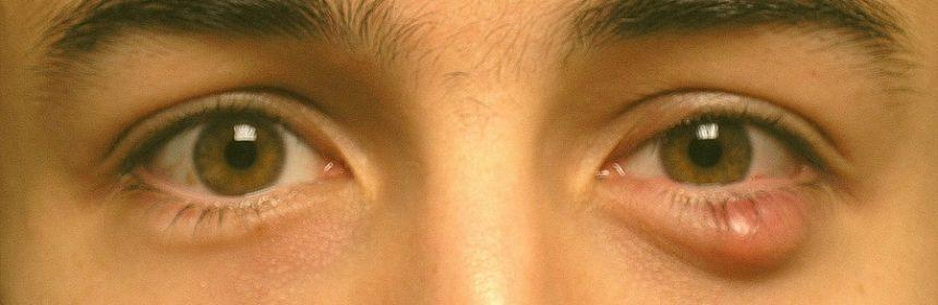 Снять воспаление на глазу в домашних условиях 851