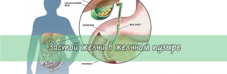 Из-за чего происходит застой желчи в желчном пузыре: лечение и признаки 1