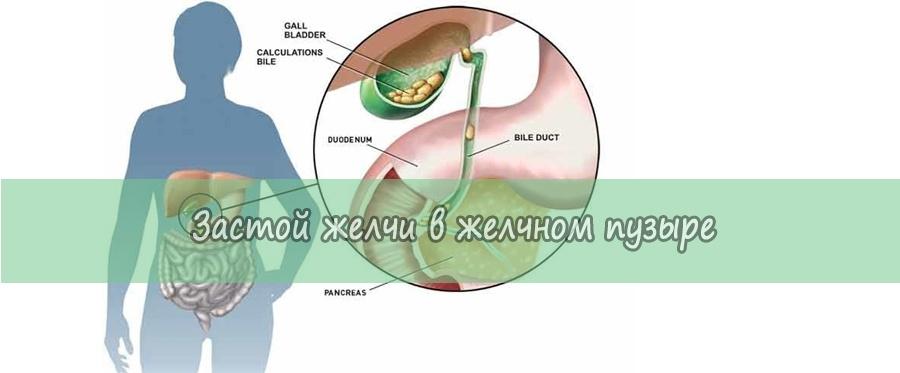 Из-за чего происходит застой желчи в желчном пузыре: лечение и признаки