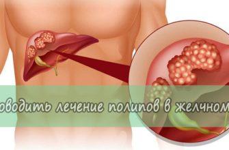 Как проводить лечение полипов в желчном пузыре