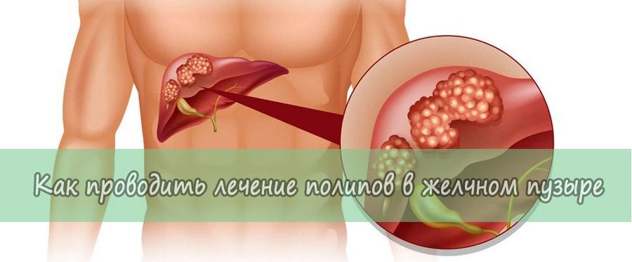 Лечение полипов в желчном пузыре без операции, лечение народными средствами