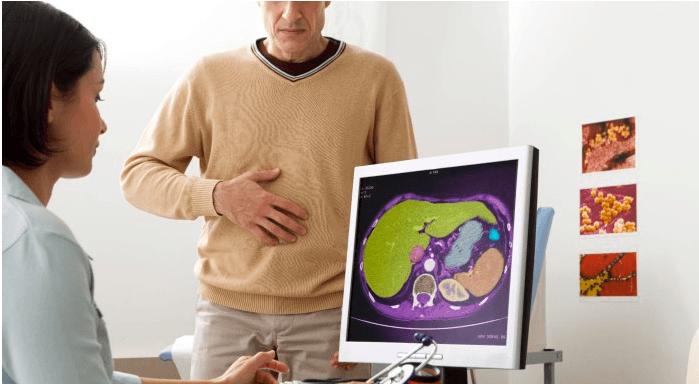 застой желчи в желчном пузыре - диагностика