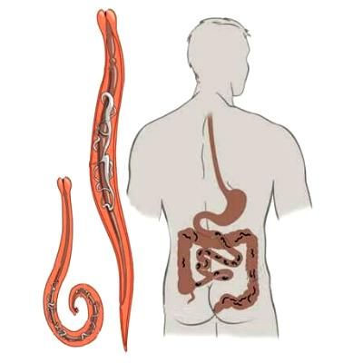 лечение паразитов в организме человека
