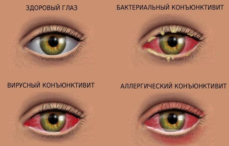 Виды конъюнктивита у взрослых